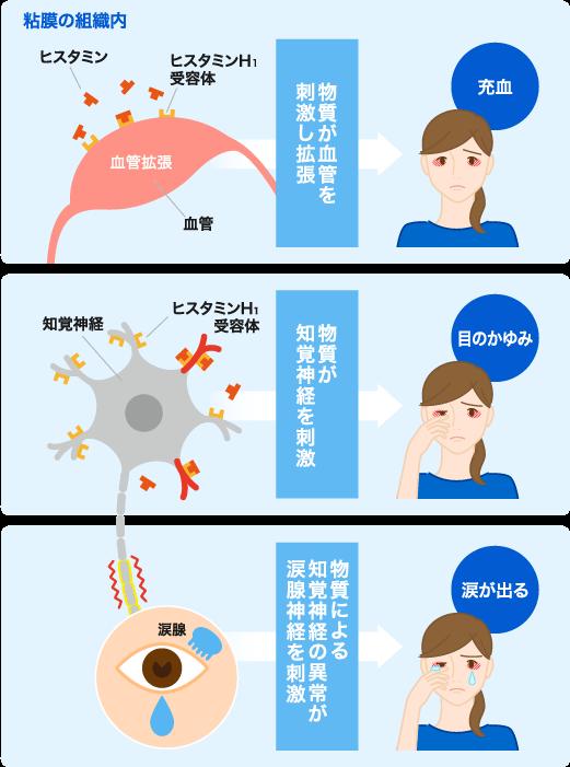 が かゆい 目 花粉 花粉症で目がかゆいのはなぜ?コンタクトをつけてはダメ?ツボは効く?