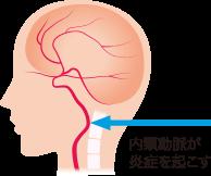 群発頭痛の原因とメカニズムの図説