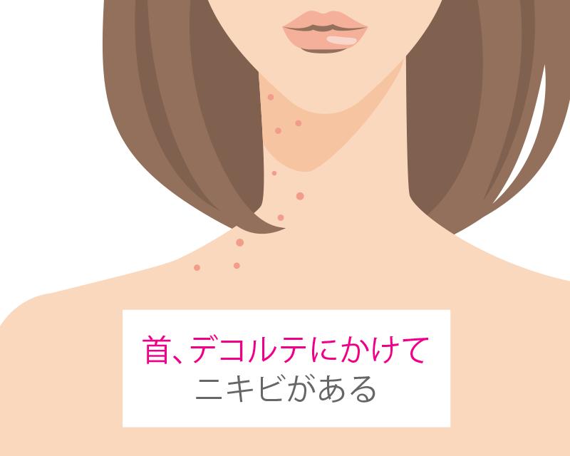 方 治し 顎 の ニキビ